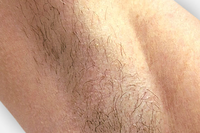 Hautarzt-Floridsdorf – Haarentfernung