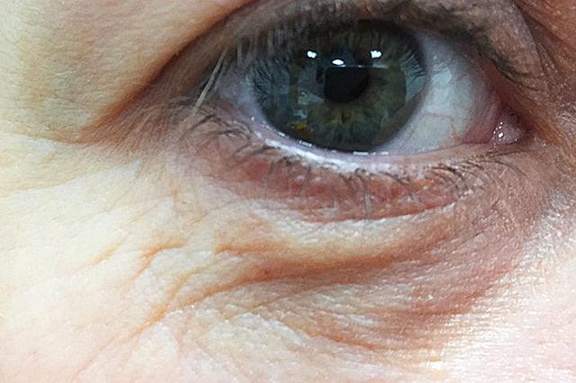 Hautarzt-Floridsdorf – Lidstraffung