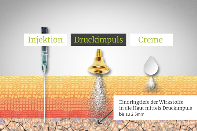 Hautarzt-Floridsdorf - Sauerstoffdruckimpulsbehandlung