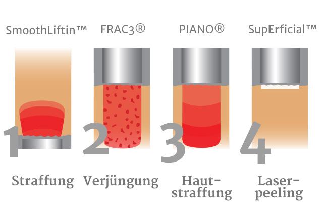 Hautarzt-Floridsdorf - Lasertherapie